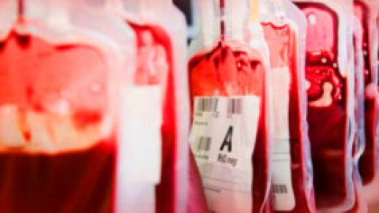 Dacă ai această grupă de sânge sunt șanse mai mari să mori
