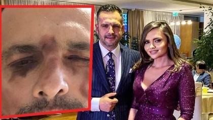 """Mădălin Ionescu și-a șocat fanii cu acest selfie. Fostul prezentator a mărturisit totul: """"Persoana care m-a desfigurat este..."""""""