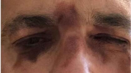 """Mădălin Ionescu, desfigurat! """"Am rămas șocat când m-am văzut în oglindă"""""""